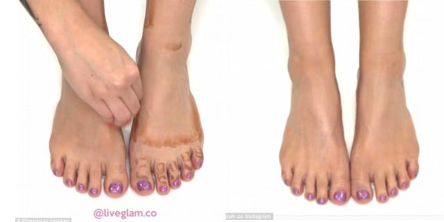 procedura contouring piede