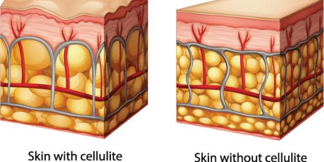 Rimedi cellulite