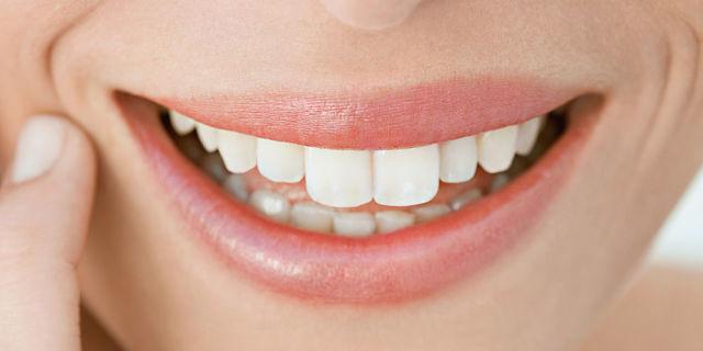 Sbiancamento denti: tecniche e prezzi