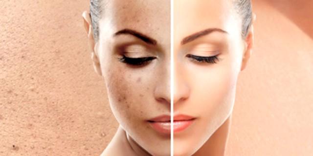 Discromie della pelle