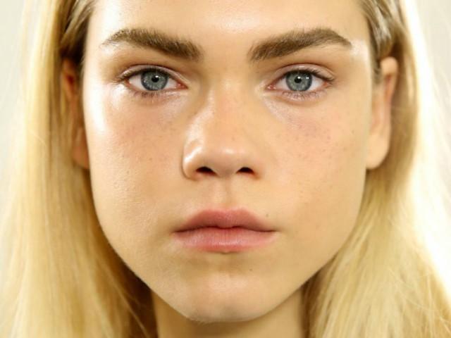 Pelle grassa viso: cause e rimedi