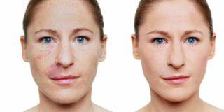 Come rapidamente candeggiare una faccia da abbronzatura