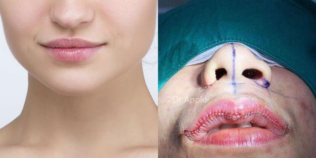 Lip reduction: basta labbra a canotto, ora si fanno rimpicciolire