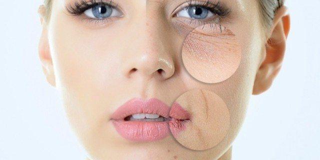 acido glicolico viso