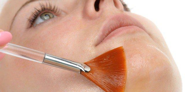 peeling chimico acido glicolico