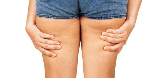 Cellulite e rotolini