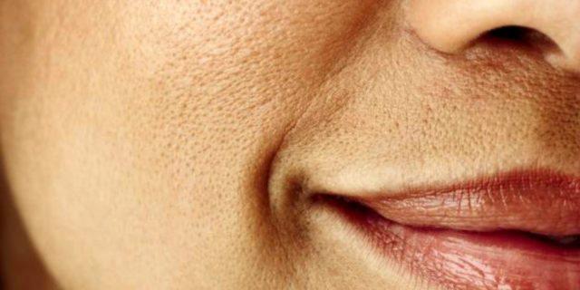 5 trucchi per chiudere i pori della pelle o renderli meno visibili