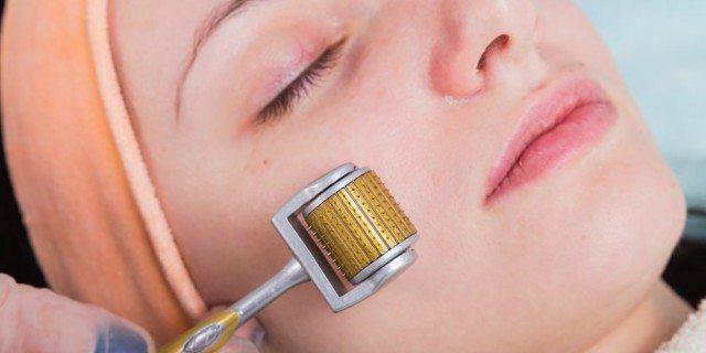 Dermaroller: gli aghi sulla pelle funzionano?