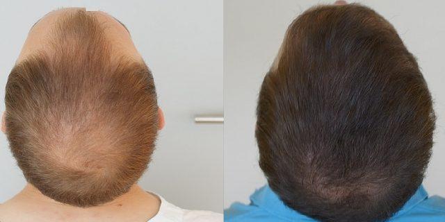 prp capelli risultati