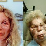16 immagini mostrano quello che non si vede mai della chirurgia plastica