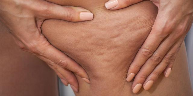 Mesoterapia: la medicina alternativa che combatte la cellulite