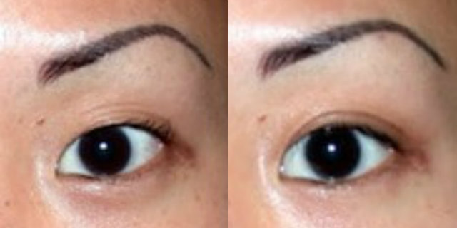 Blefaroplastica: prima e dopo