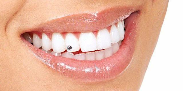 Brillantino al dente: l'accessorio perfetto per il tuo sorriso