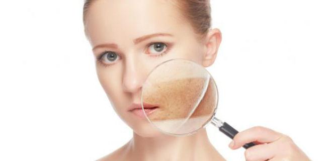 Idrochinone, la sostanza sbiancante pericolosa per la nostra pelle