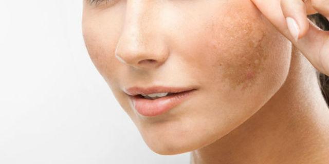 l'idrochidone peggiora le macchie scure della pelle