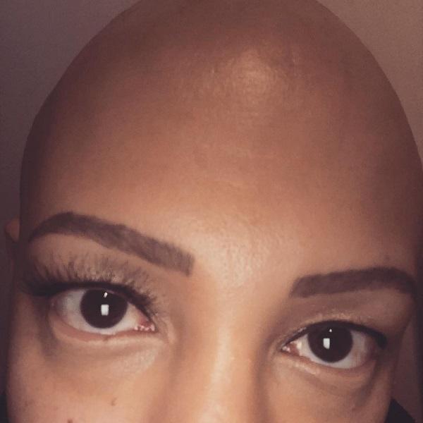 """""""Come ho reagito alla perdita definitiva dei miei capelli"""""""