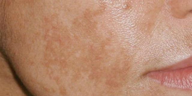 Macchie scure sul viso: 4 modi per eliminarle o prevenirle