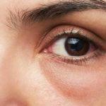 Borse sotto agli occhi: 6 cose che dicono su di te