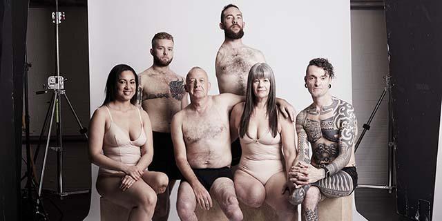 """""""Perché ho fotografato 19 uomini, donne e bambine senza uno o più arti"""""""