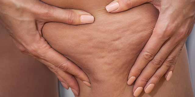 Rimedi cellulite: 6 consigli davvero efficaci e 6 bufale mangiasoldi da ignorare