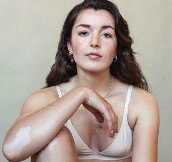 La bellezza maculata delle donne con una malattia della pelle in 13 scatti