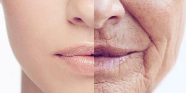 Invecchiamento cutaneo: 5 modi per contrastarlo