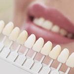 Pro e contro delle faccette dentali per un sorriso smagliante