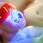 Sbiancamento denti: come funziona il metodo con lampada LED