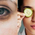 Occhiaie: perché si formano e consigli per eliminarle