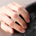Infoltimento capelli: come ridare densità e volume a una chioma diradata