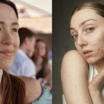 Skin positivity e come stiamo imparando ad amarci
