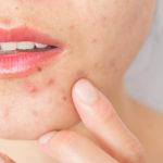 Skin purging: cosa vuol dire quando la pelle si auto-depura