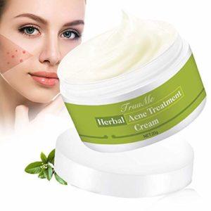 Crema anti acne TruuMe
