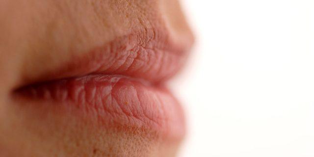 Rughe naso labiali, esistono rimedi per attenuarle senza aghi o chirurgia?